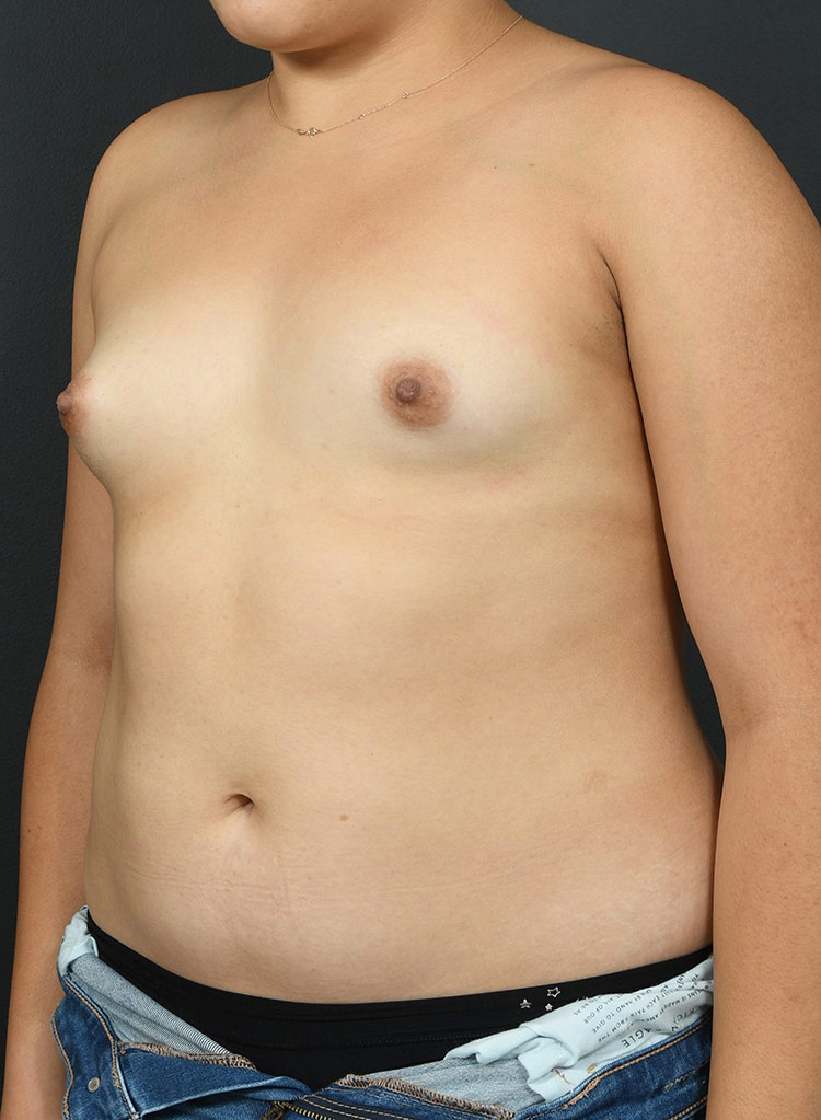 Breast Augmentation-with Implant: Case  44