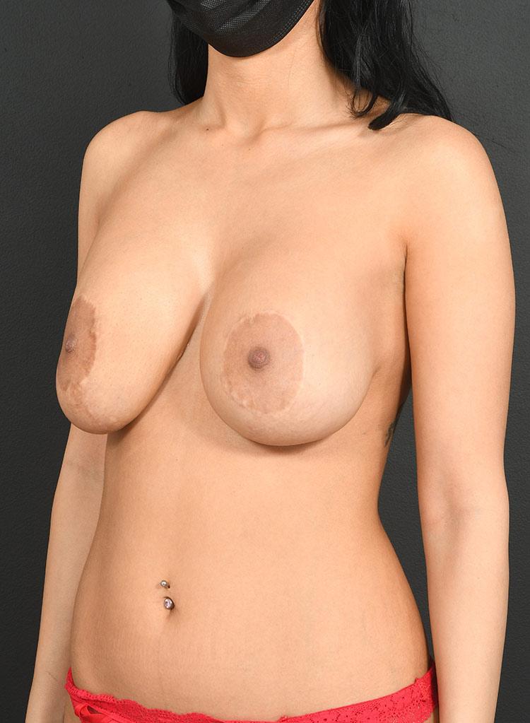 Mastopexy Breast Lift Photos: Case 31