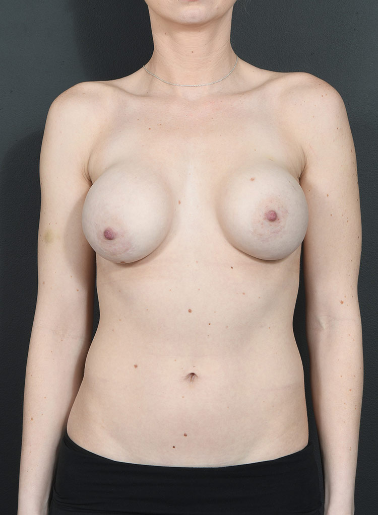 Breast Asymmetry Photos: Case 6