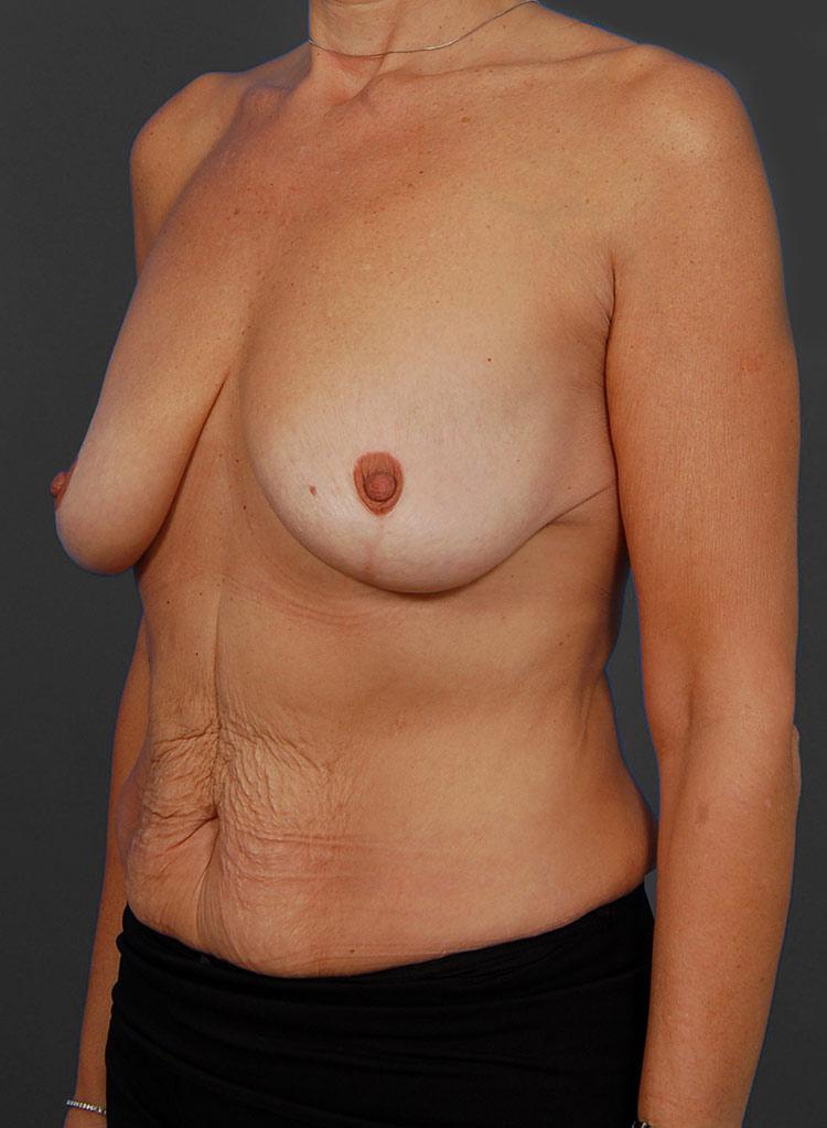 Mastopexy Breast Lift Photos: Case 32