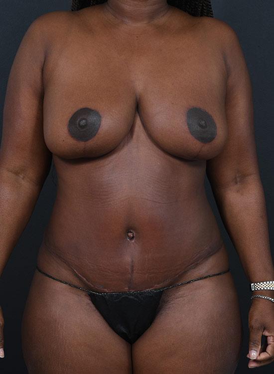 Abdominoplasty Photos: Case 14