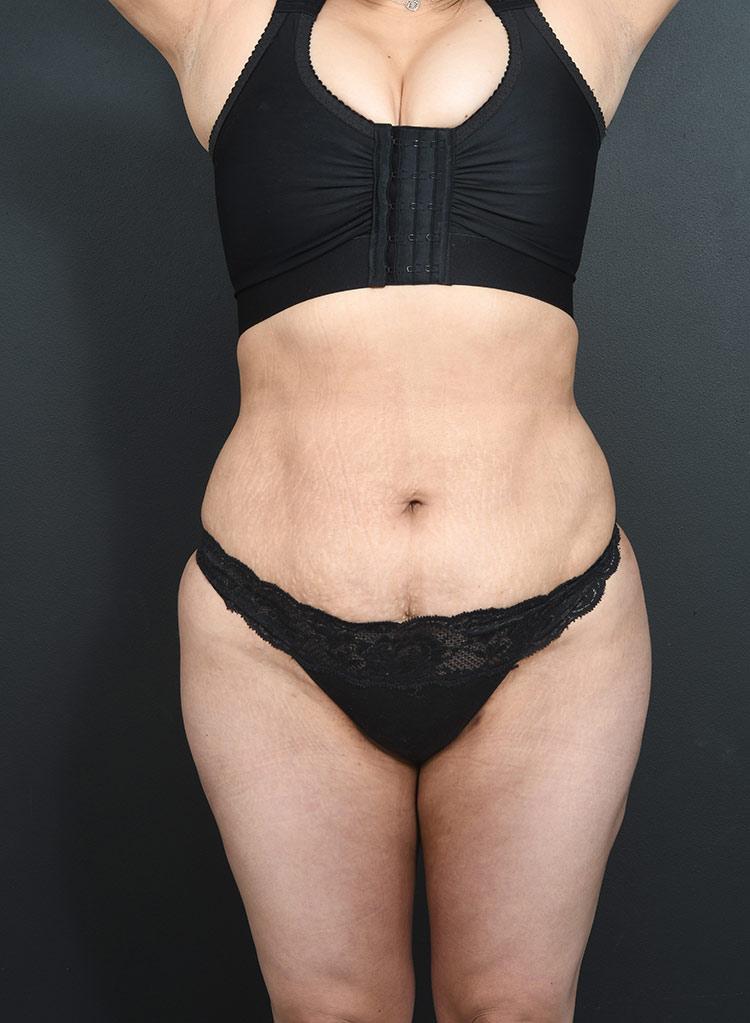 Liposuction Photos: Case 17