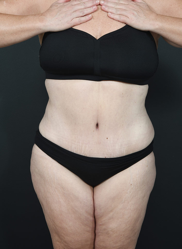 Breast Reduction Photos: Case 12