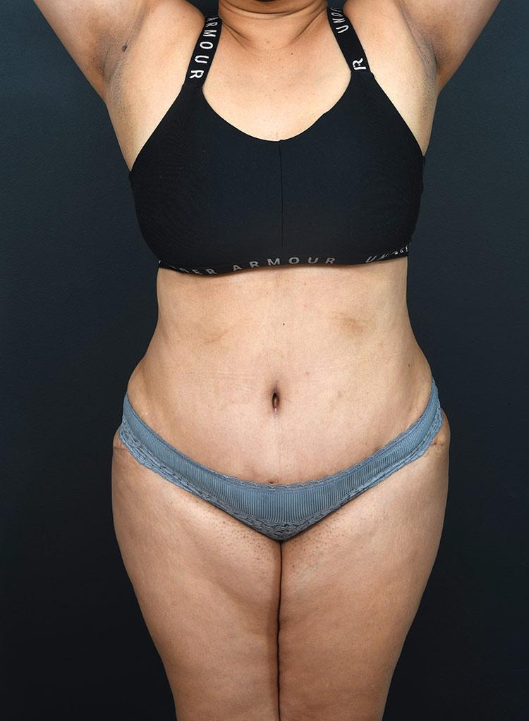 Abdominoplasty Photos: Case 13