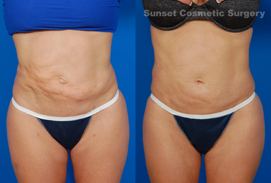 blog-lipo-revision-before-after-1
