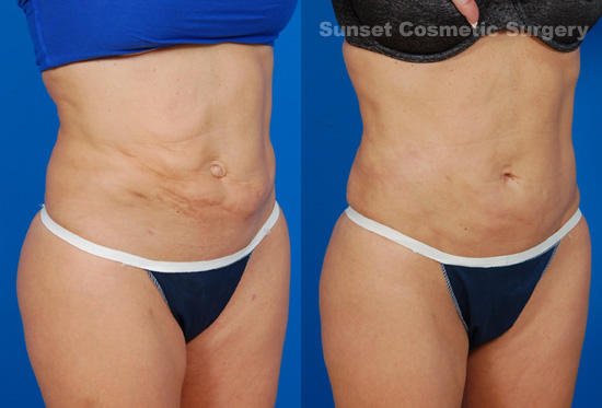 blog-lipo-revision-before-after-2