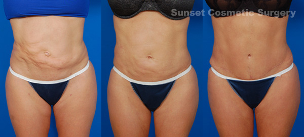 blog-lipo-revision-before-after-3