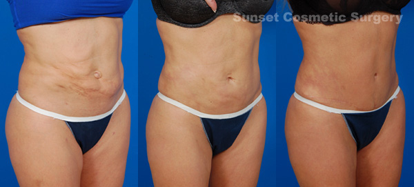 A Patient And Her Liposuction Revision Story Sunset Cosmetic Surgery